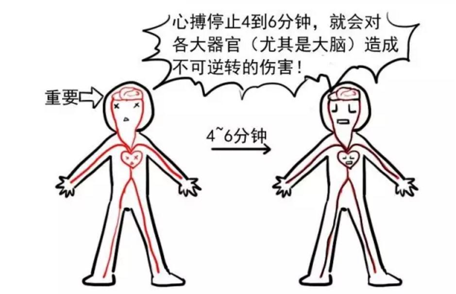 漫画:心脏复苏术这么简单又重要图片
